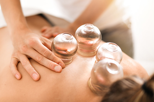 What to Expect on Your First Cupping Therapy?